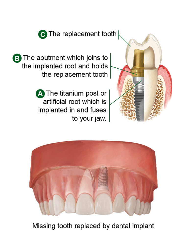 implants-diagram-large
